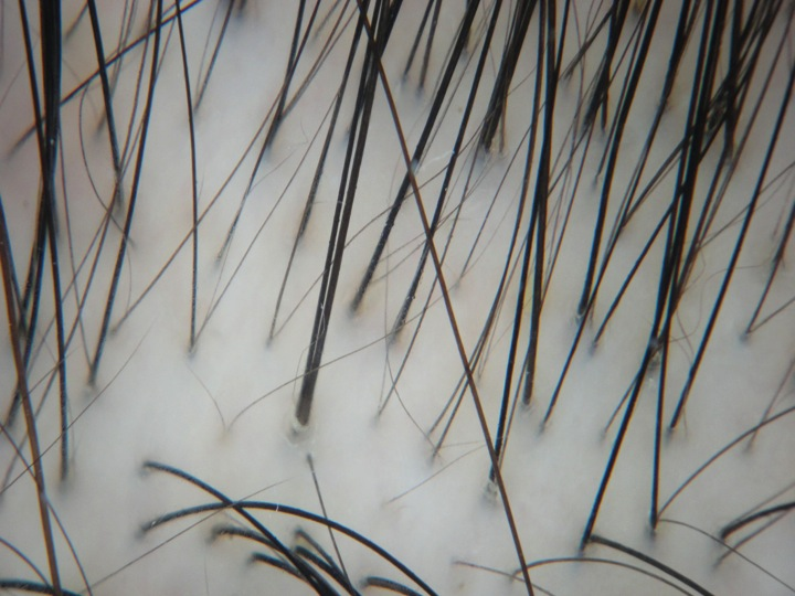 "Miniaturized (or ""thinning"") hairs in androgenetic alopecia"