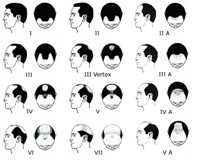 Seven stages of the Hamilton Norwood Hair Loss Scale in Men (Androgenetic Alopecia)