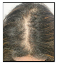 Early stages of Female Pattern (Androgenetic) Hair Loss