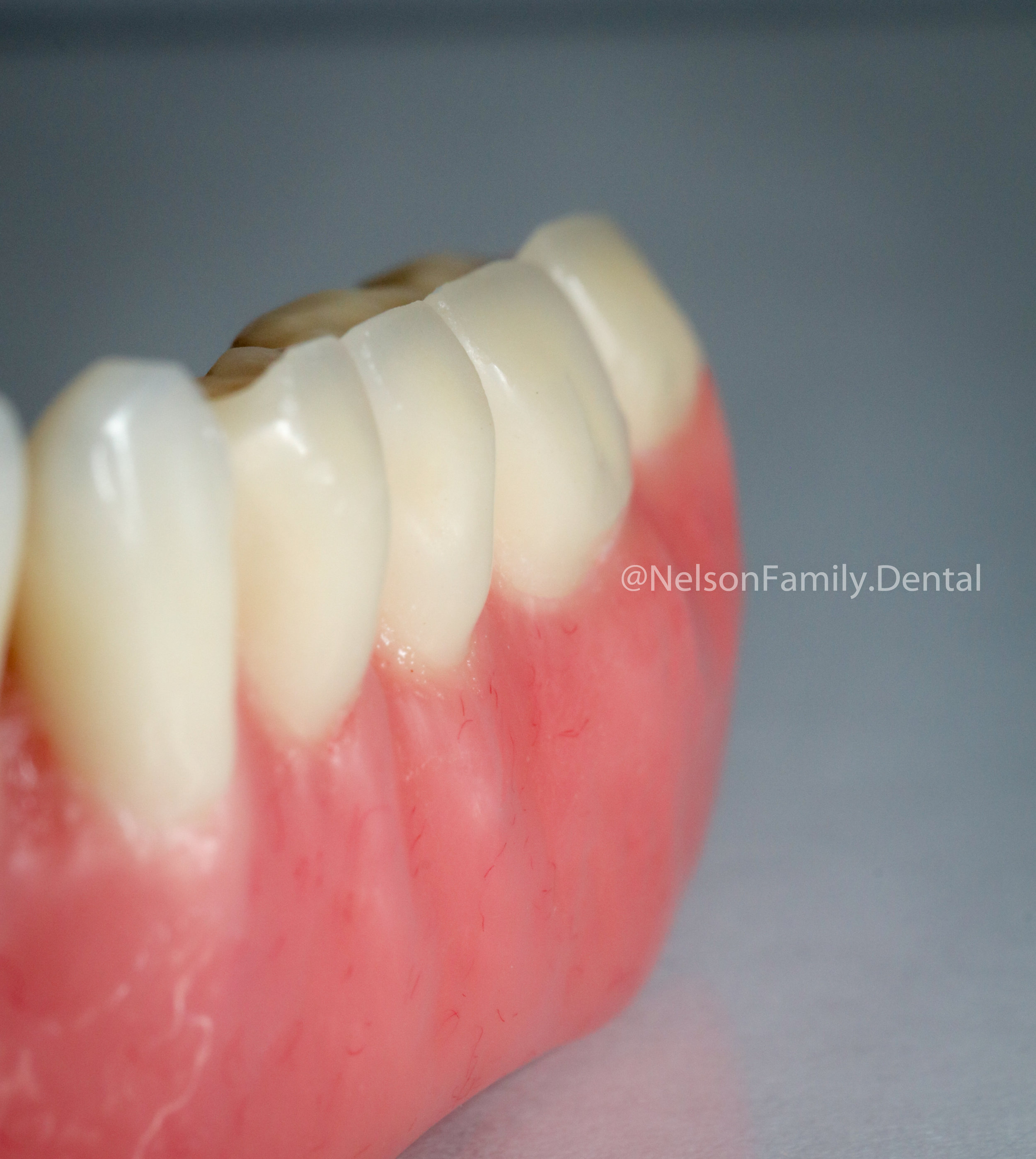 Porcelain-Denture-Implants-5782.jpg