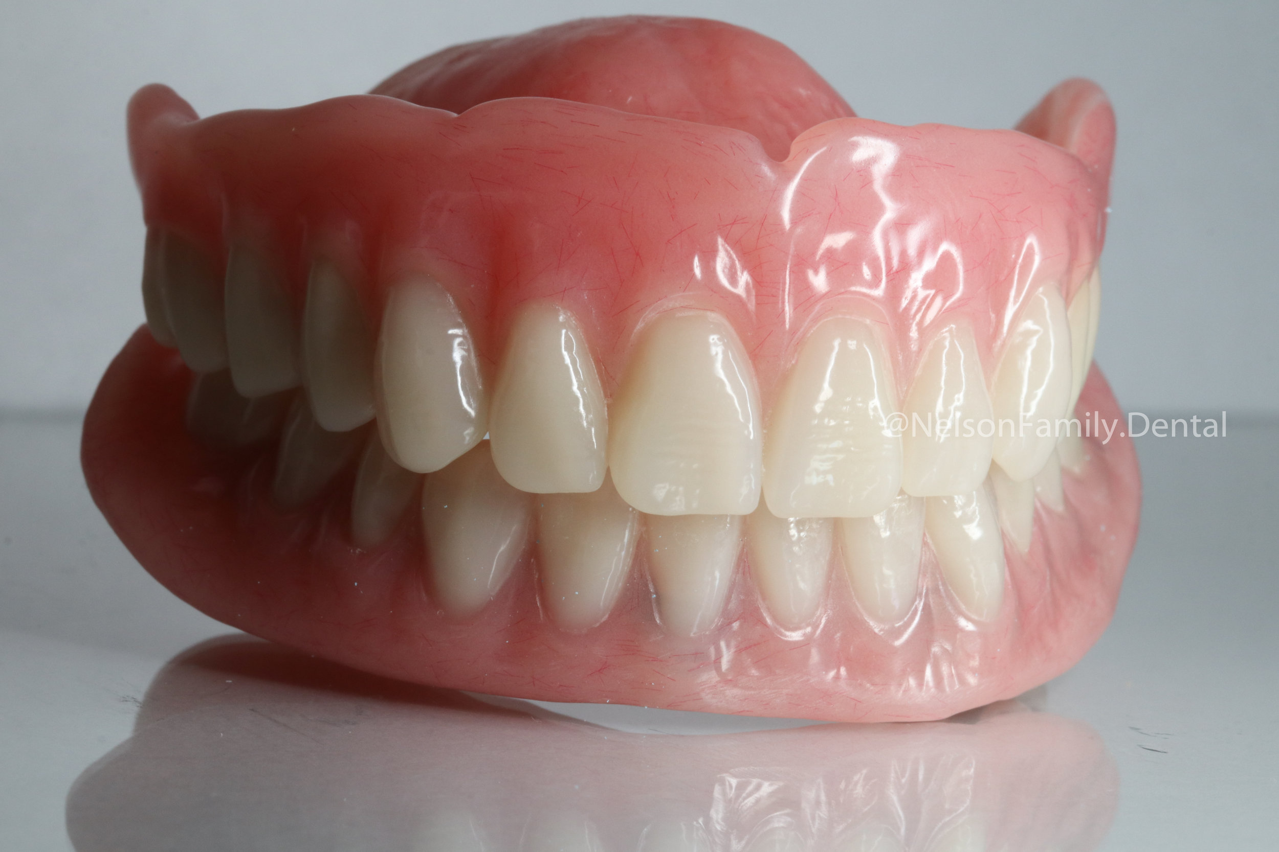 Implant-Denture-Vita-Teeth-5887.jpg