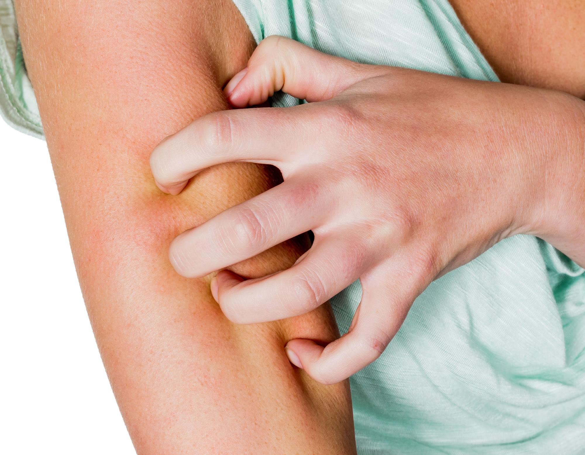 Dermatology Tips
