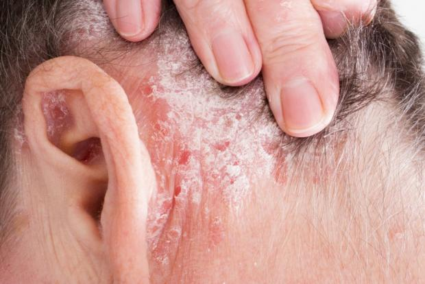 When someone has psoriasis, you'll often see raised patches coated with a silvery-white scale.