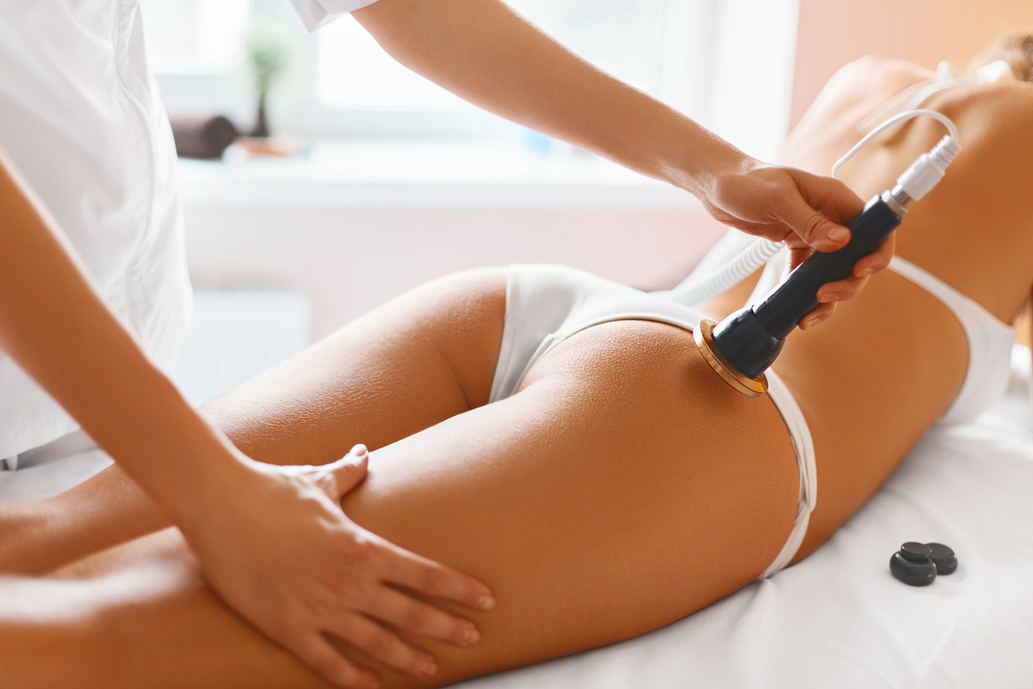 Radiofrequency and turmeric for cellulite reduction | LipoTherapeia