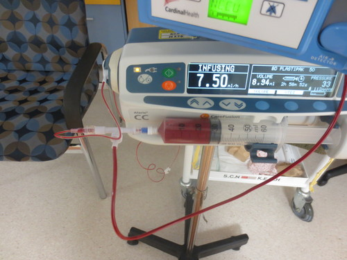 A very small blood transfusion for a premature baby