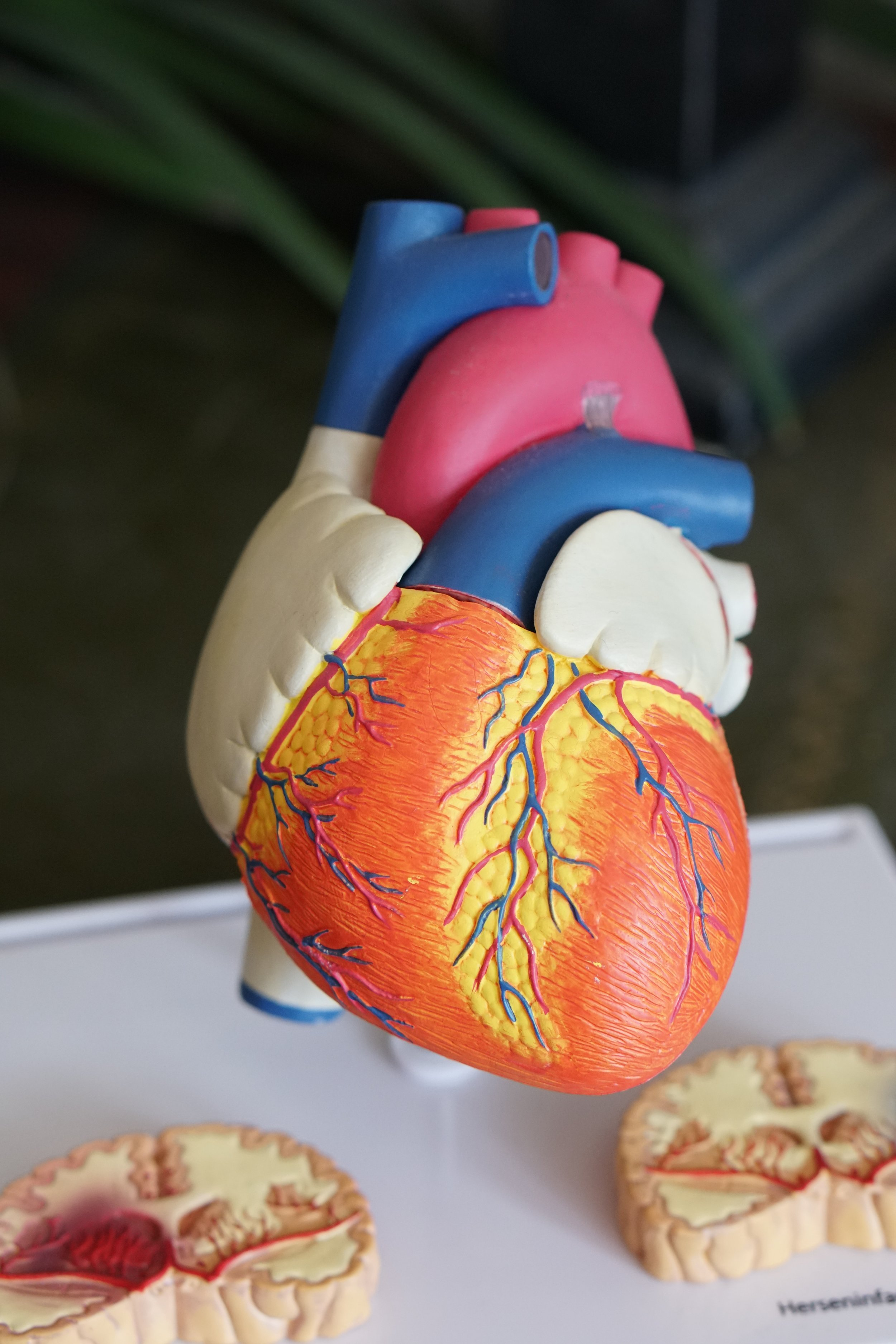 Photo of a model of the heart and major arteries and veins.