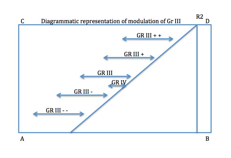 mvt diagram 3 png