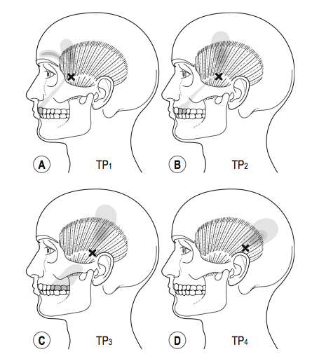 Somatic referral mapping of masseter (Selvaratnum, et al., 2009, Headaches, Orofascial Pain, and Bruxism. Elsevier, p. 72).