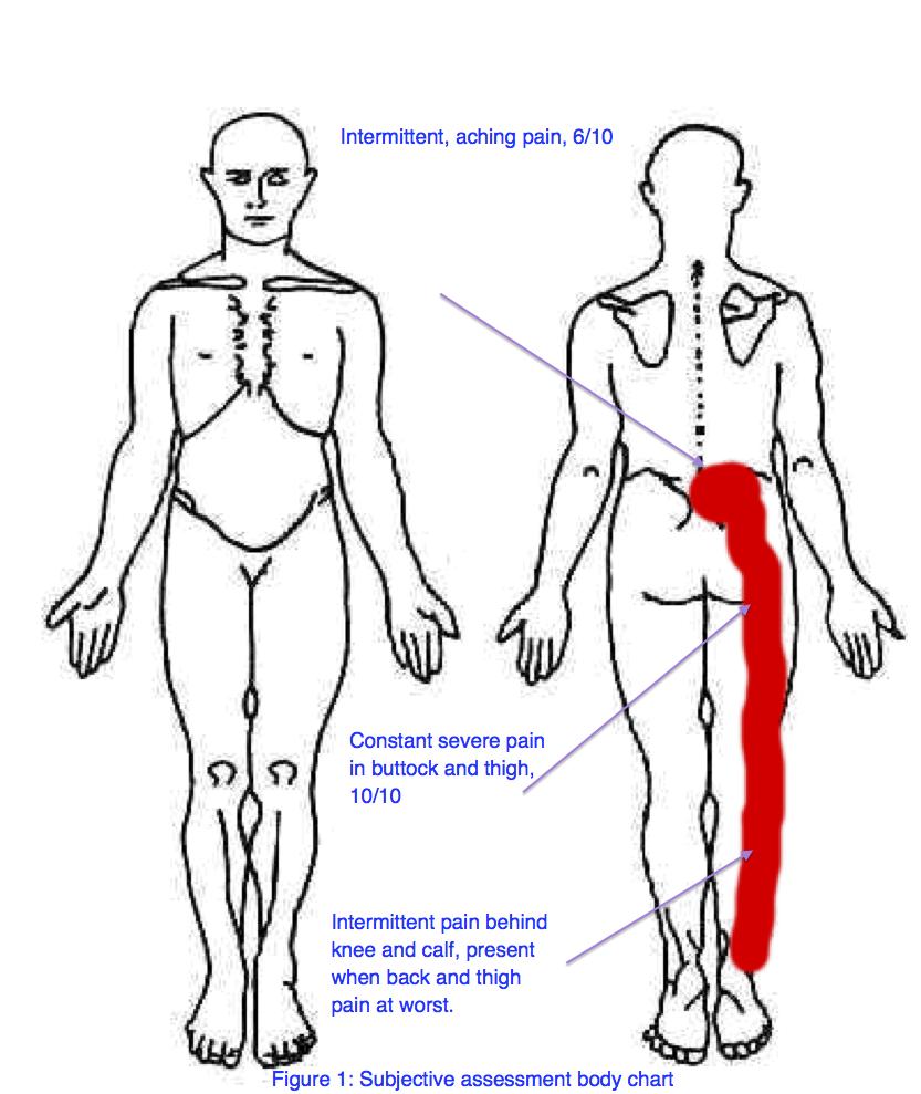 Lumbar disc herniation with radiculopathy - a case study — Rayner