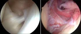 (Arthroscopic view of frozen shoulder on the right Pain> stiffness)