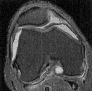 Axial PDWI FS MR shows a thick, irregular, and undulating medial parapatellar plica   extending deep into the trochlear notch, and interposed between the medial trochlea and patella. Such plicae can become inflamed and thickened due to repetitive trauma during knee motion, setting up a vicious cycle of trauma and inflammation.   (Andrew Sonin, StatDx, retrieved August 24th, 2015)