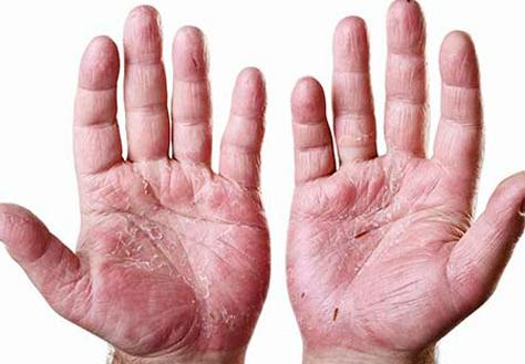 https://s.sharecare.com/img/video/stills/2890070547001-what-is-psoriatic-arthritis.jpg