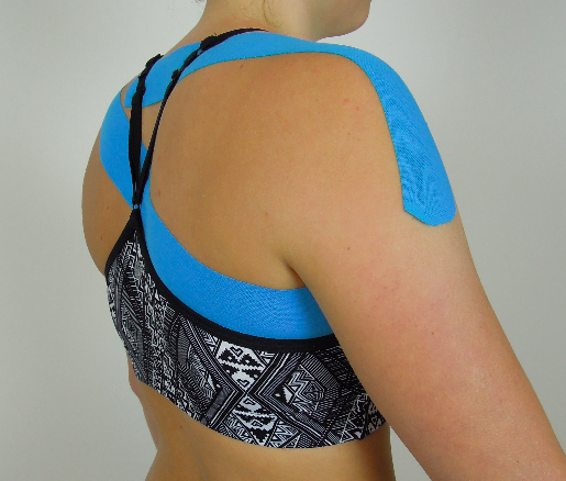 Taping scapula upward rotation & posterior tilt