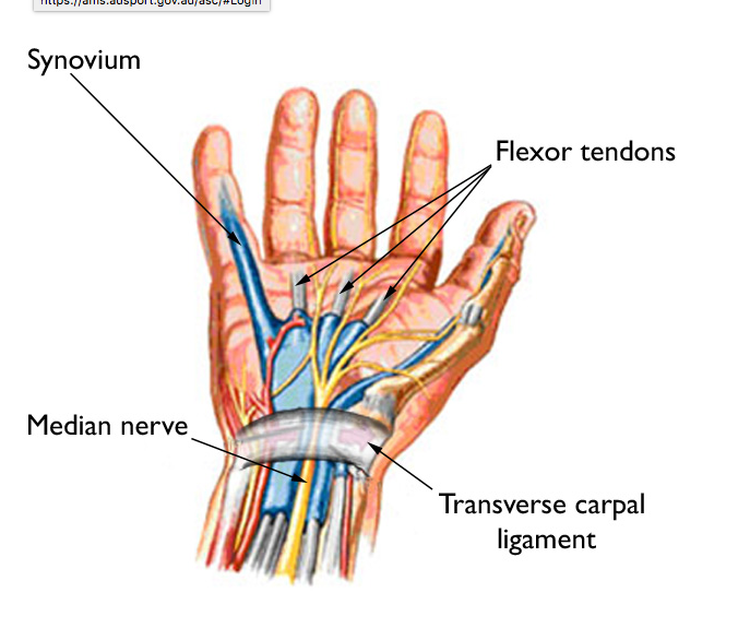 Carpal tunnel syndrome — Rayner & Smale