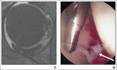 MRI Arthrogram (fraying at 3 o'clock)     Arthroscope