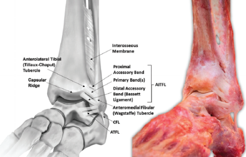 Picture 1. Anterolateral view of left ankle, showing AITFL and interosseous membrane. (Williams 2015, pg 92).