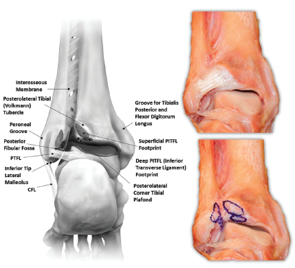 Picture 5. Posterior view of ankle (Williams 2015, pg 94).
