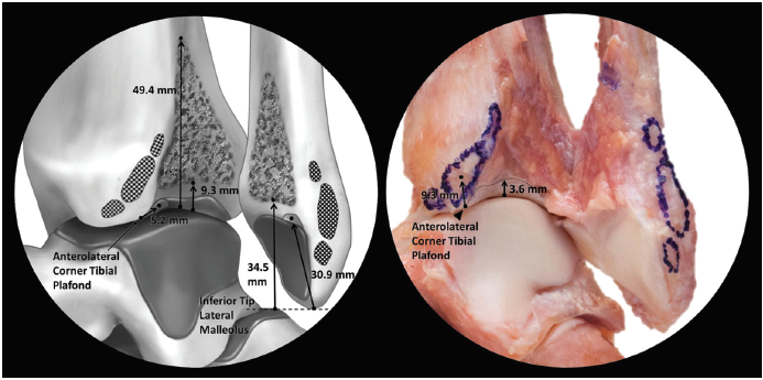 Picture 6. Open-book view of interosseous tibiofibular ligament (Williams 2015, pg 95).