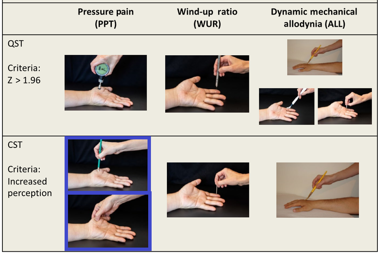 Zhu et al, 2019 page 1830. Pressure Pain Threshold with eraser (PPT - eraser), Pressure Pain Threshold with thumb (PPT - thumb).