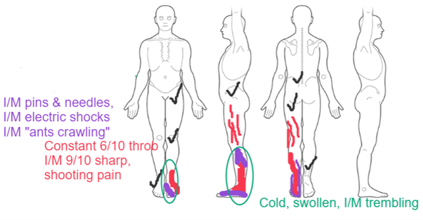 Figure 1. Body Chart at Initial Assessment.