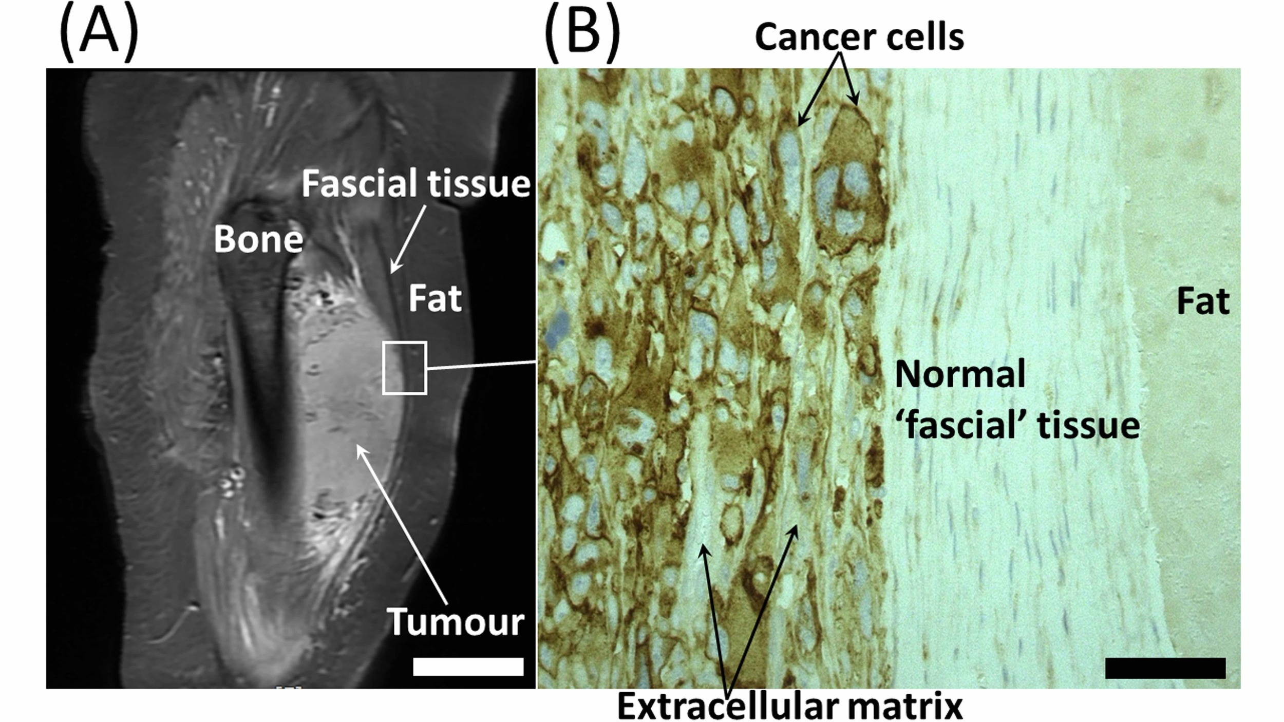 Fig. 4 (A) Magnetic resonance image of a soft tissue tumour in the thigh.The lighter grey appearance of the tumour is due to the high cellular content and different ECM components of the tumour compared to the bone, normal fascial tissue and fat. Scale bar = 20 mm. (B) Histological section of the interface between the tumour and normal tissues. The intense brown staining in the cancer cells is due to high expression of the invasive enzyme membrane type-1 matrix metalloproteinase. This enzyme cleaves the hyaluronan receptor CD44. Scale bar = 50 microns.