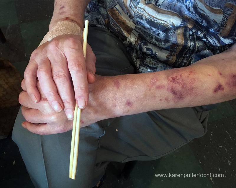 Bob's Arms and Chop Sticks.JPG