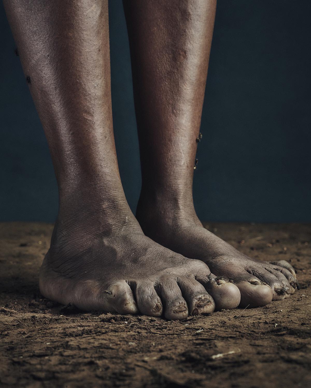 1_PODO_Feet_2000_MJP_LowRes.jpg