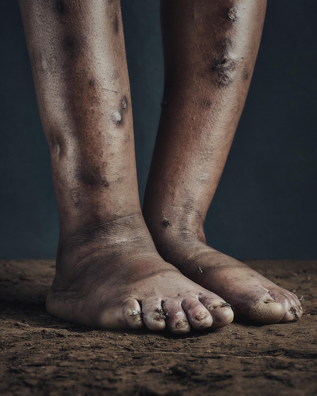 2_PODO_Feet_2000_MJP_LowRes.jpg