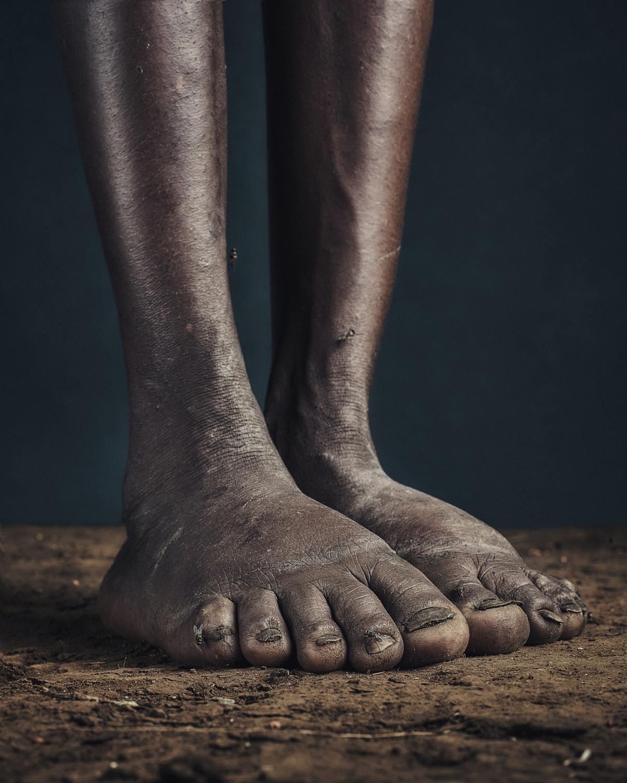 3_PODO_Feet_2000_MJP_LowRes.jpg