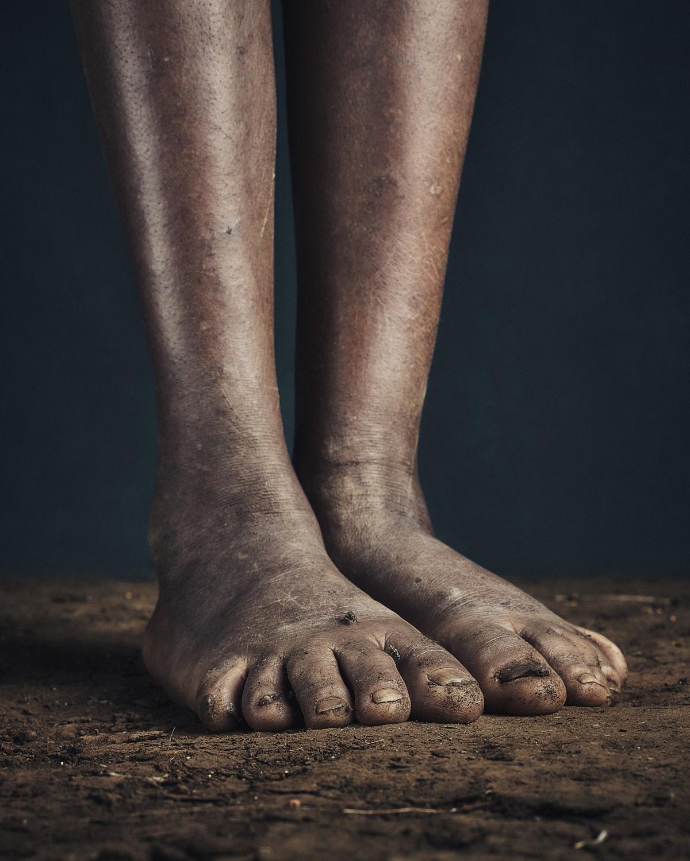 4_PODO_Feet_2000_MJP_LowRes.jpg