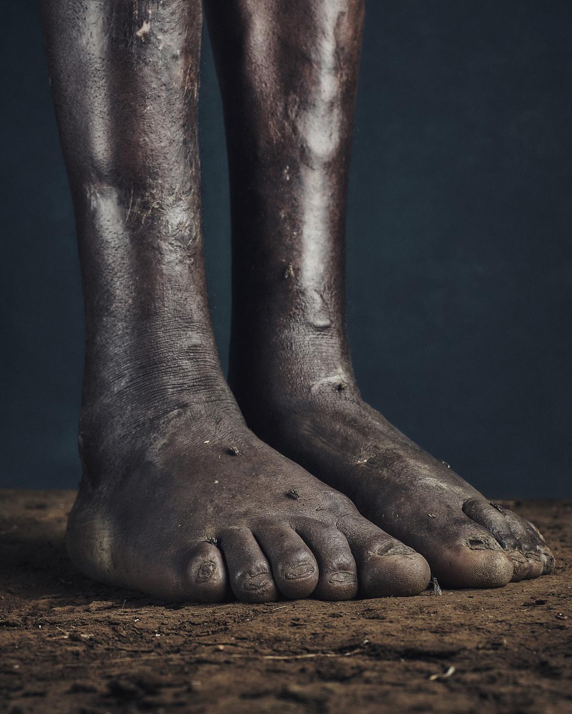 5_PODO_Feet_2000_MJP_LowRes.jpg