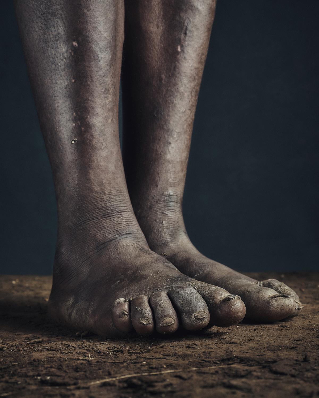 6_PODO_Feet_2000_MJP_LowRes.jpg