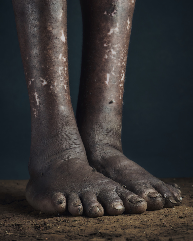 7_PODO_Feet_2000_MJP_LowRes.jpg