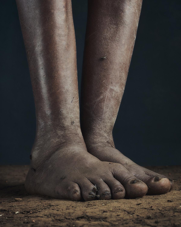 8_PODO_Feet_2000_MJP_LowRes.jpg