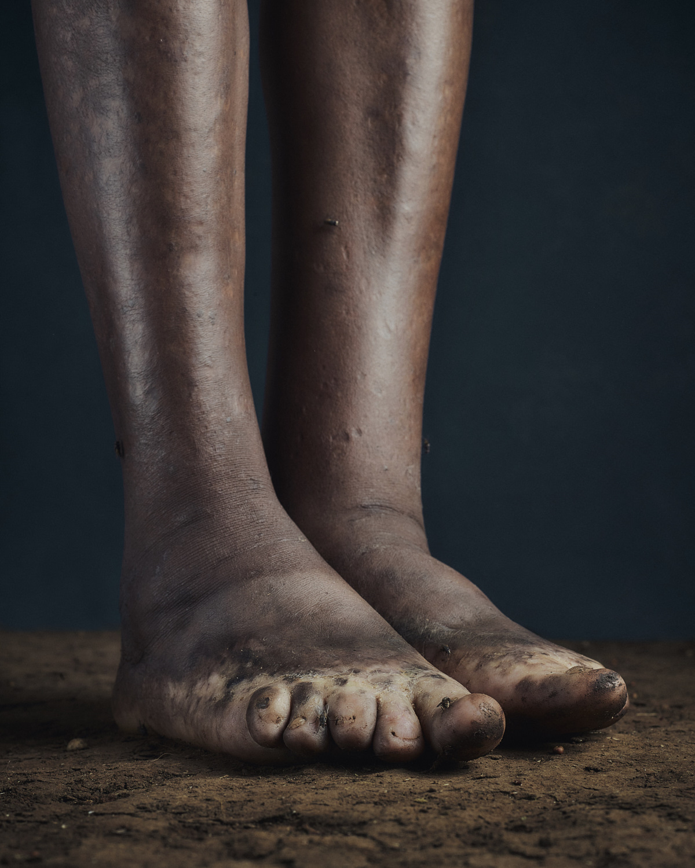 9_PODO_Feet_2000_MJP_LowRes.jpg
