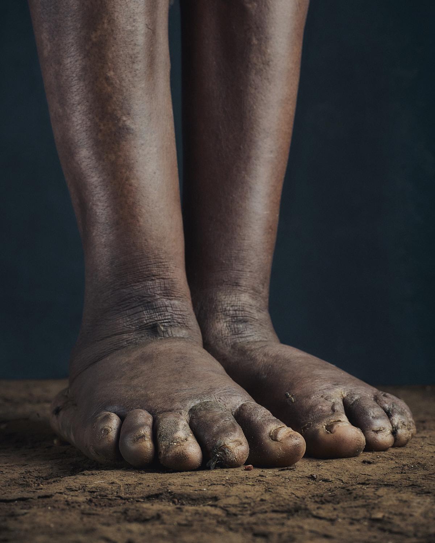 10_PODO_Feet_2000_MJP_LowRes.jpg