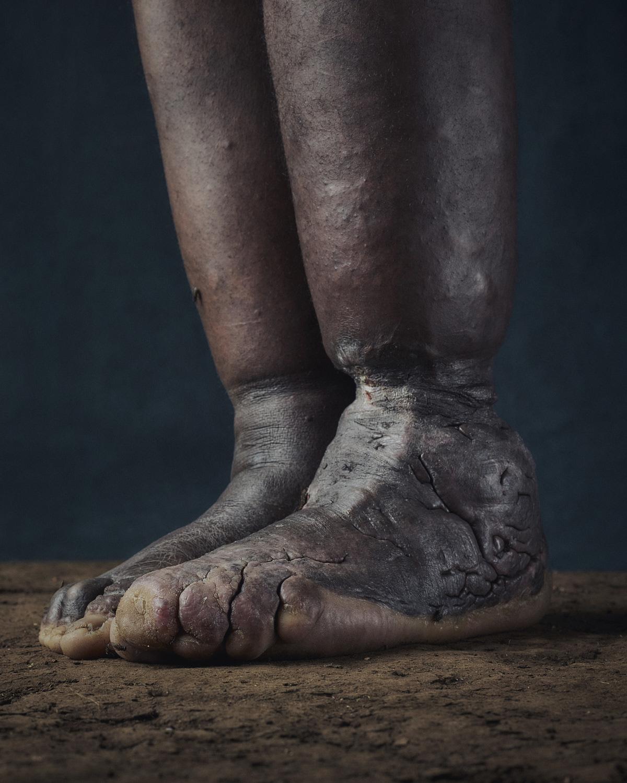 11_PODO_Feet_2000_MJP_LowRes.jpg