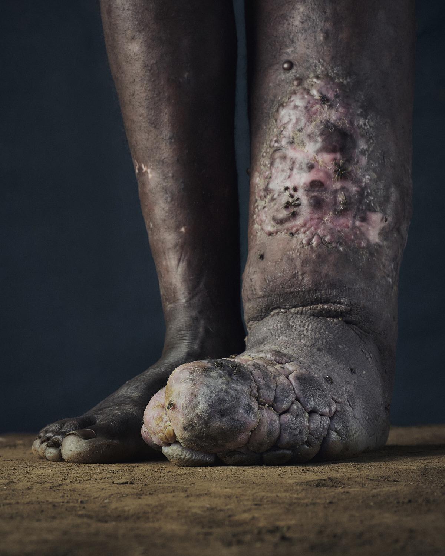 12_PODO_Feet_2000_MJP_LowRes.jpg