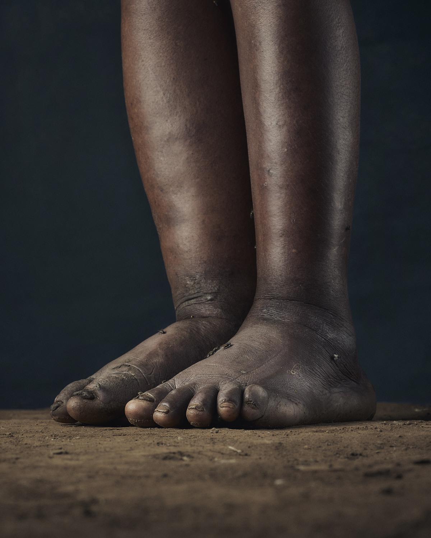 13_PODO_Feet_2000_MJP_LowRes.jpg