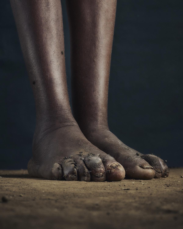 14_PODO_Feet_2000_MJP_LowRes.jpg
