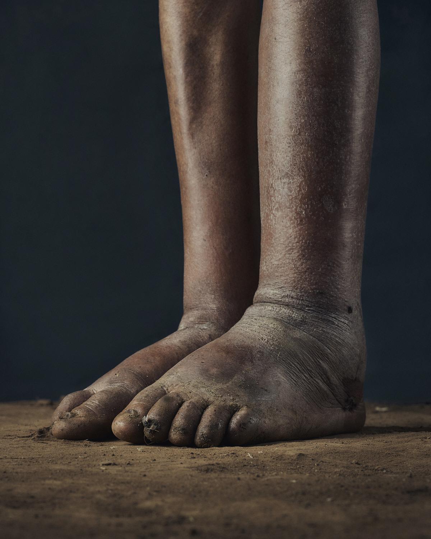15_PODO_Feet_2000_MJP_LowRes.jpg