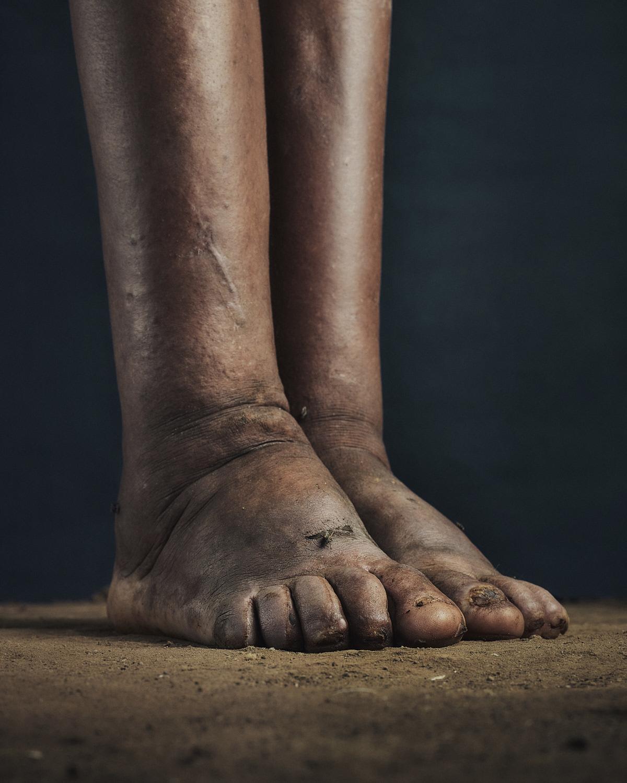 16_PODO_Feet_2000_MJP_LowRes.jpg