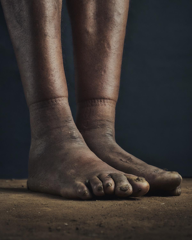 17_PODO_Feet_2000_MJP_LowRes.jpg