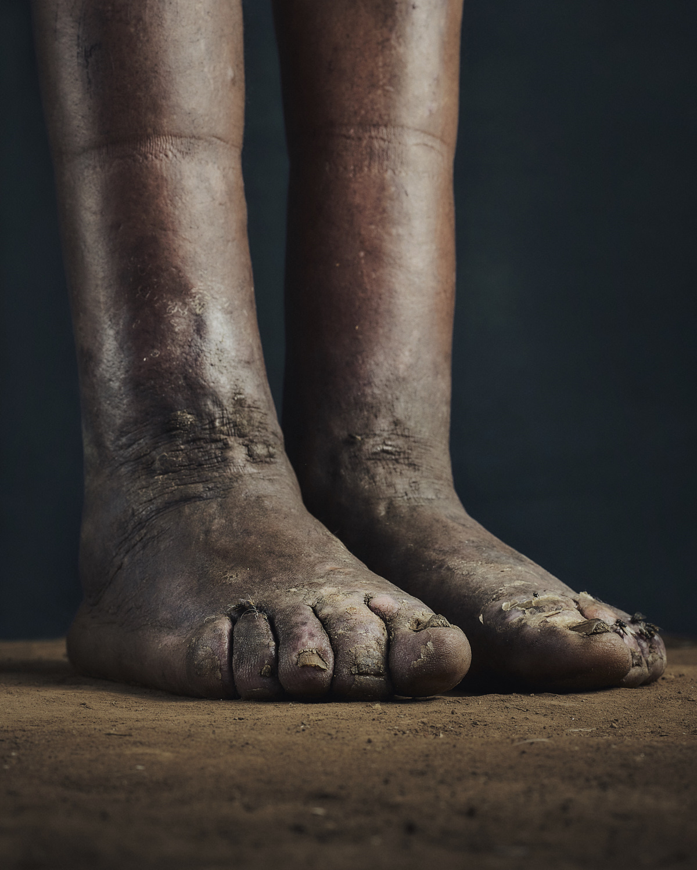 18_PODO_Feet_2000_MJP_LowRes.jpg