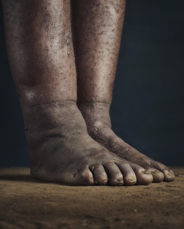 19_PODO_Feet_2000_MJP_LowRes.jpg