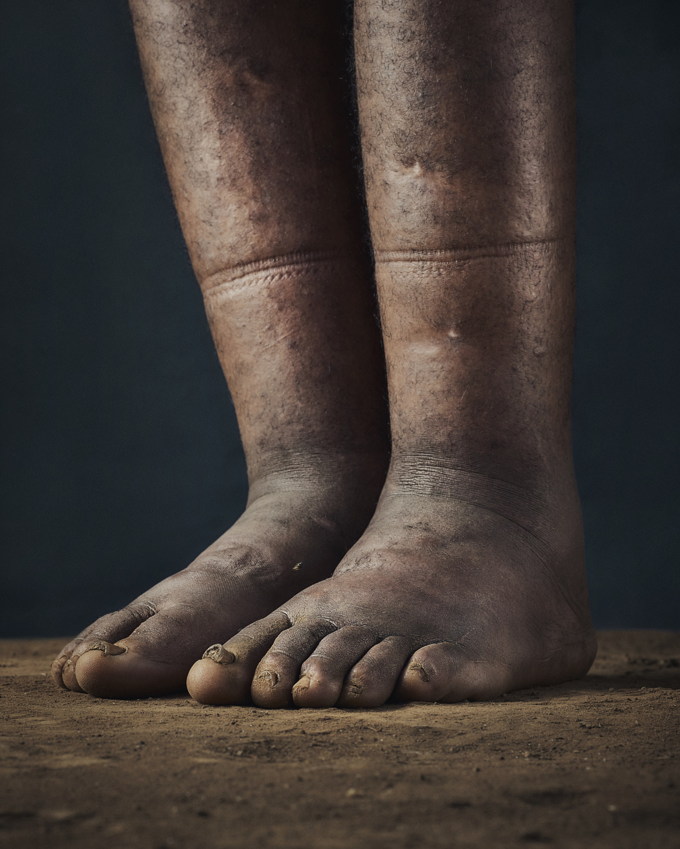 20_PODO_Feet_2000_MJP_LowRes.jpg