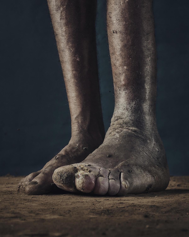 21_PODO_Feet_2000_MJP_LowRes.jpg