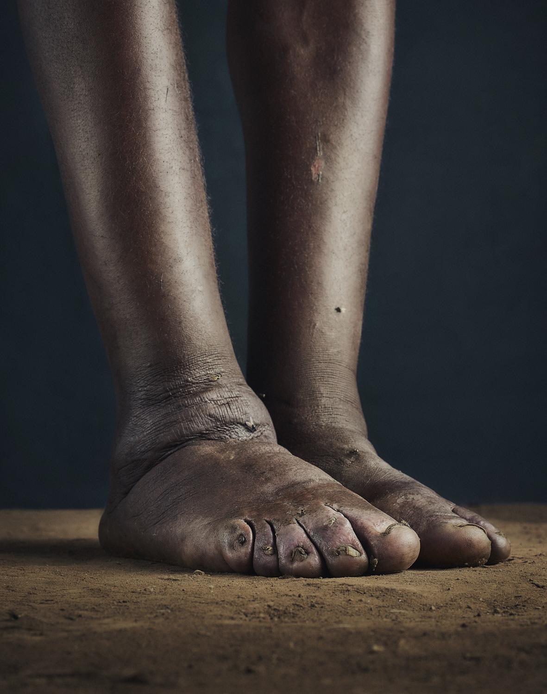 22_PODO_Feet_2000_MJP_LowRes.jpg