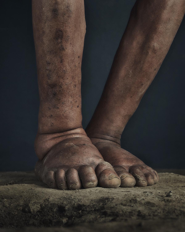 23_PODO_Feet_2000_MJP_LowRes.jpg