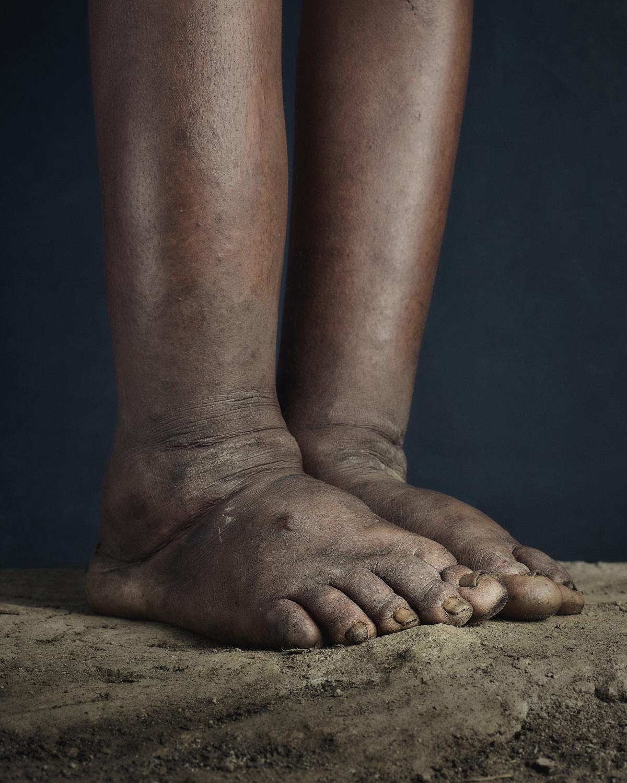 24_PODO_Feet_2000_MJP_LowRes.jpg